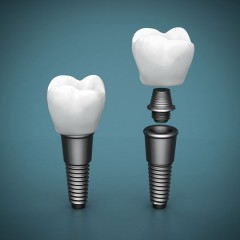 Titanium Implant and Tooth